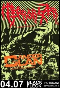 Terrorizer Cancer Clan 2015 | © privat
